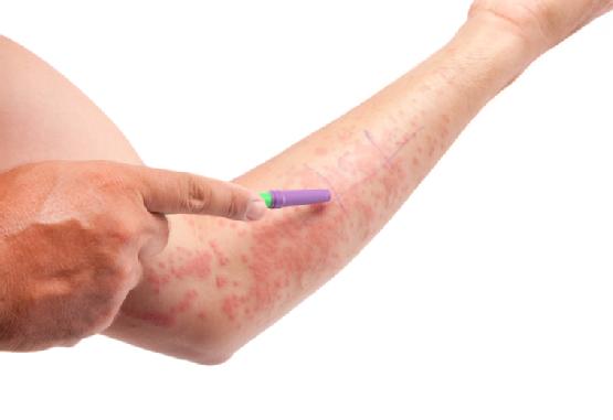 Allergies de contact