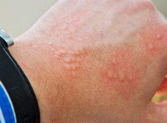 allergie cutanée