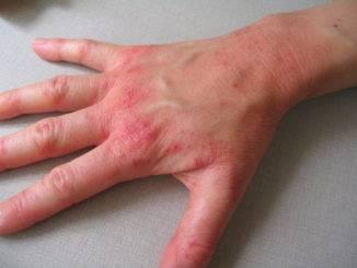 allergie mains