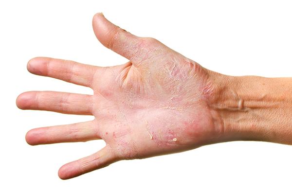 dermatite-de-contact